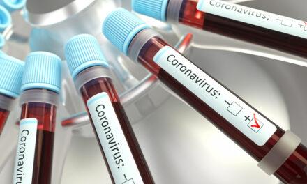 IL Virus (che non c'è) e le Cure – FABIO FRANCHI – Infettivologo